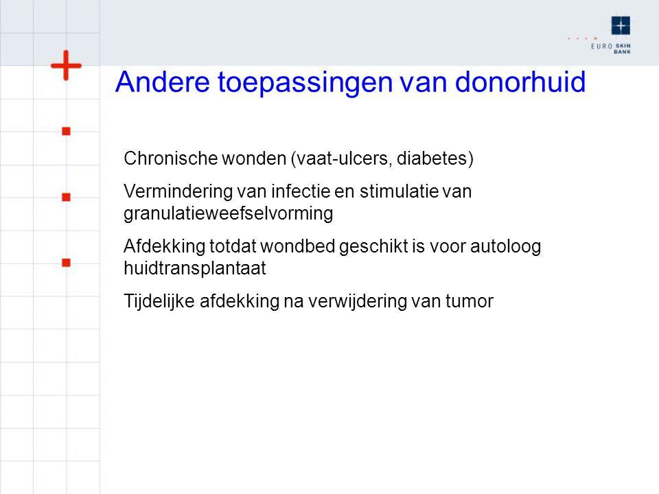 Nieuwe toepassing donorhuid Celvrije donorhuid, dermale matrix Implantaat in (brandwond) onder autoloog huidtransplantaat Verbetering van kwaliteit littekens (Glyaderm) Celvrije donorhuid inzaaien met autologe cellen (keratinocyten fibroblasten), levend huidsubsituut voor chronische wonden (Tiscover, A-skin B.V.)