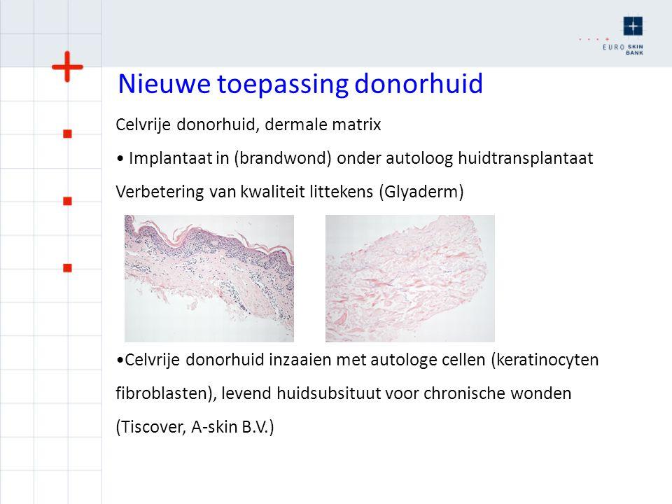 Nieuwe toepassing donorhuid Celvrije donorhuid, dermale matrix Implantaat in (brandwond) onder autoloog huidtransplantaat Verbetering van kwaliteit li