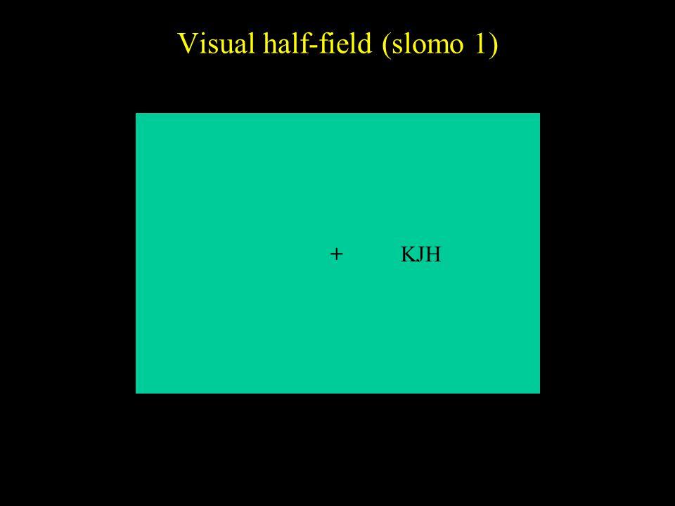 Visual half-field (slomo 1) +KJH
