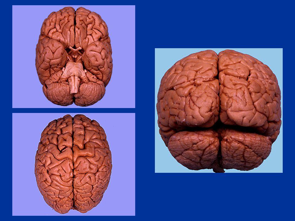 Handedness and language dominance Knecht et al.(2000), Brain.