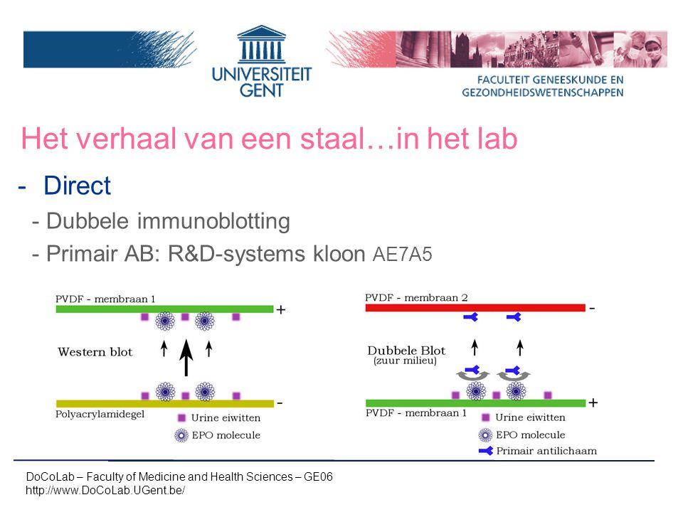 Het verhaal van een staal…in het lab -Direct -Dubbele immunoblotting -Primair AB: R&D-systems kloon AE7A5 DoCoLab – Faculty of Medicine and Health Sci