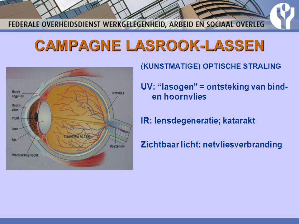 """CAMPAGNE LASROOK-LASSEN (KUNSTMATIGE) OPTISCHE STRALING UV: """"lasogen"""" = ontsteking van bind- en hoornvlies IR: lensdegeneratie; katarakt Zichtbaar lic"""