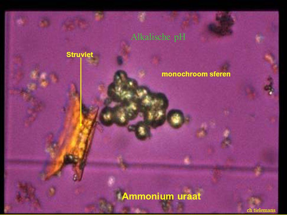 Ammonium uraat monochroom sferen Struviet ch tielemans Alkalische pH