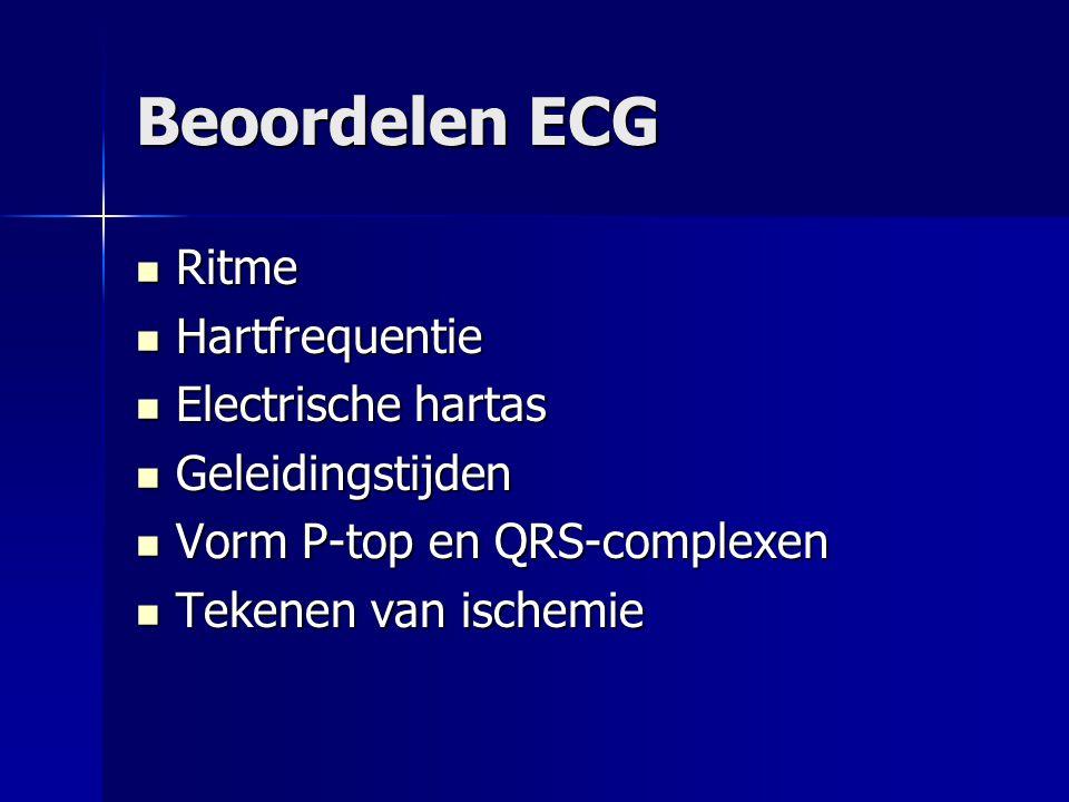 Beoordelen ECG Ritme Ritme Hartfrequentie Hartfrequentie Electrische hartas Electrische hartas Geleidingstijden Geleidingstijden Vorm P-top en QRS-com