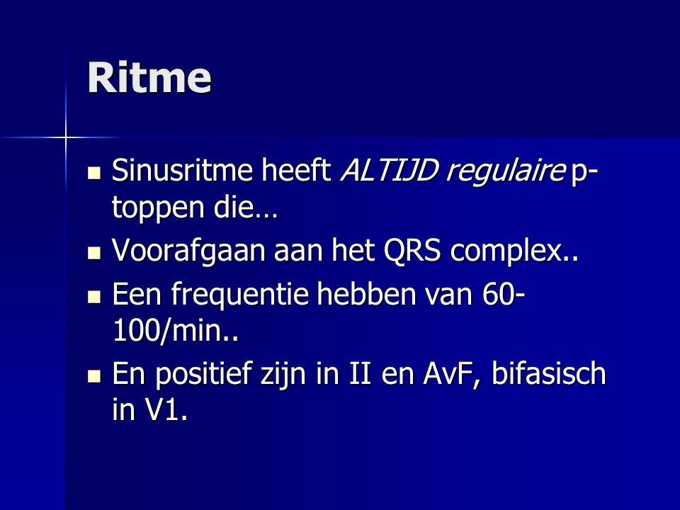 Ritme Sinusritme heeft ALTIJD regulaire p- toppen die… Sinusritme heeft ALTIJD regulaire p- toppen die… Voorafgaan aan het QRS complex.. Voorafgaan aa
