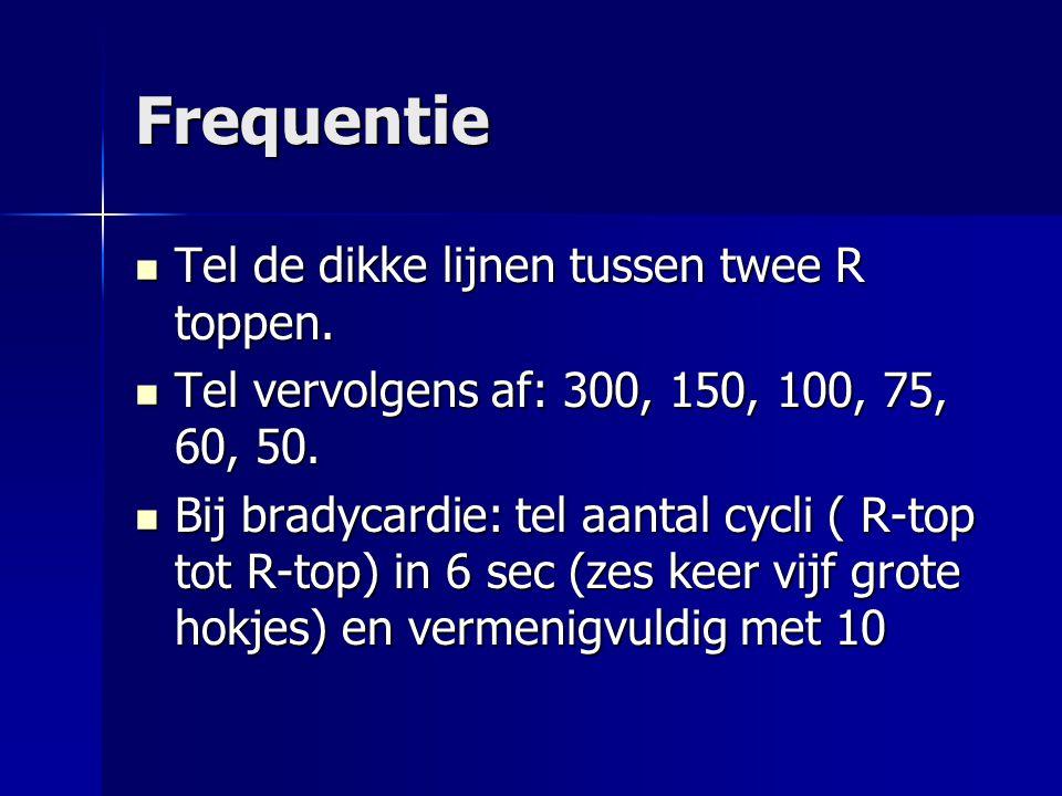 Frequentie Tel de dikke lijnen tussen twee R toppen. Tel de dikke lijnen tussen twee R toppen. Tel vervolgens af: 300, 150, 100, 75, 60, 50. Tel vervo