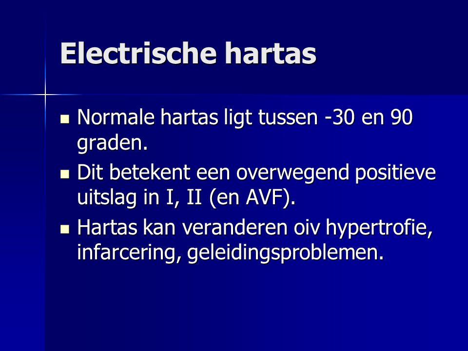Electrische hartas Normale hartas ligt tussen -30 en 90 graden. Normale hartas ligt tussen -30 en 90 graden. Dit betekent een overwegend positieve uit