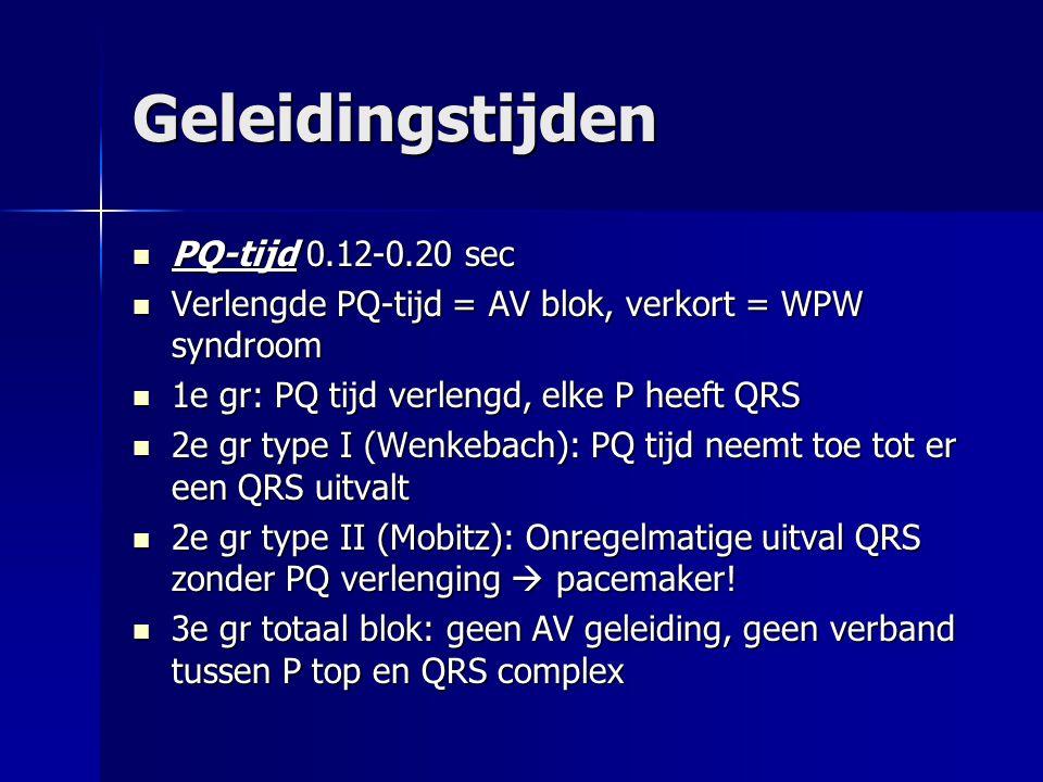 Geleidingstijden PQ-tijd 0.12-0.20 sec PQ-tijd 0.12-0.20 sec Verlengde PQ-tijd = AV blok, verkort = WPW syndroom Verlengde PQ-tijd = AV blok, verkort
