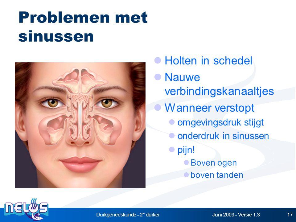 Juni 2003 - Versie 1.3Duikgeneeskunde - 2* duiker17 Problemen met sinussen Holten in schedel Nauwe verbindingskanaaltjes Wanneer verstopt omgevingsdruk stijgt onderdruk in sinussen pijn.