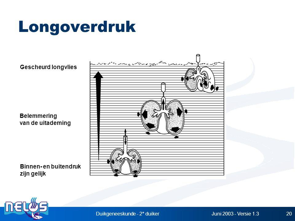 Juni 2003 - Versie 1.3Duikgeneeskunde - 2* duiker20 Longoverdruk Binnen- en buitendruk zijn gelijk Belemmering van de uitademing Gescheurd longvlies