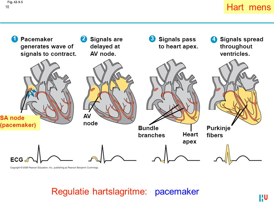 18 Fig. 42-9-5 Signals spread throughout ventricles. 4 Purkinje fibers Pacemaker generates wave of signals to contract. 1 SA node (pacemaker) ECG Sign
