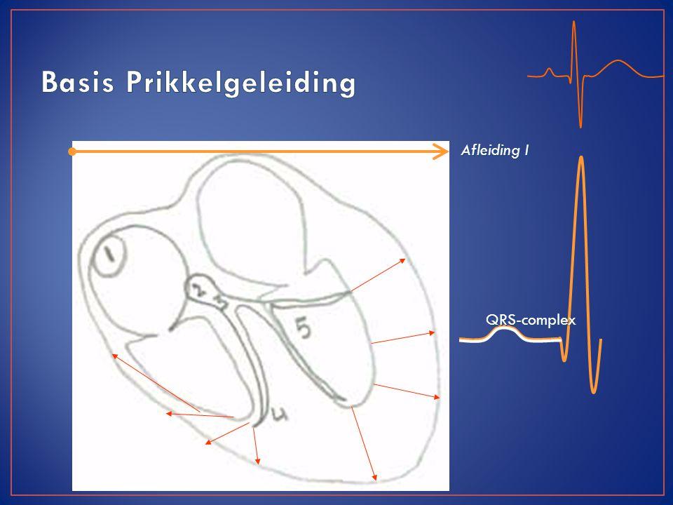 Afleiding I QRS-complex