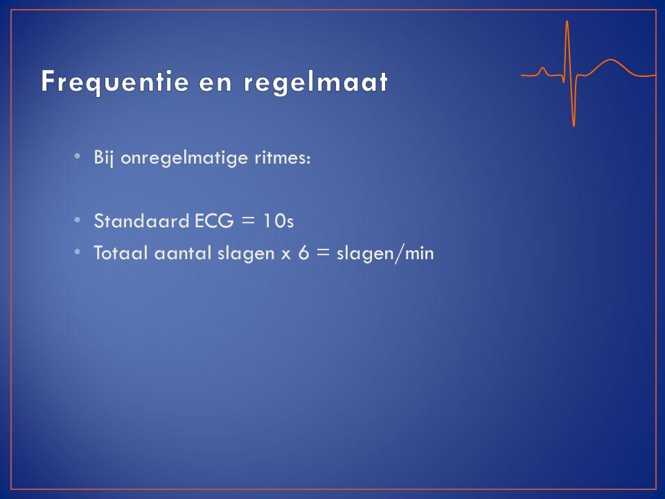Bij onregelmatige ritmes: Standaard ECG = 10s Totaal aantal slagen x 6 = slagen/min