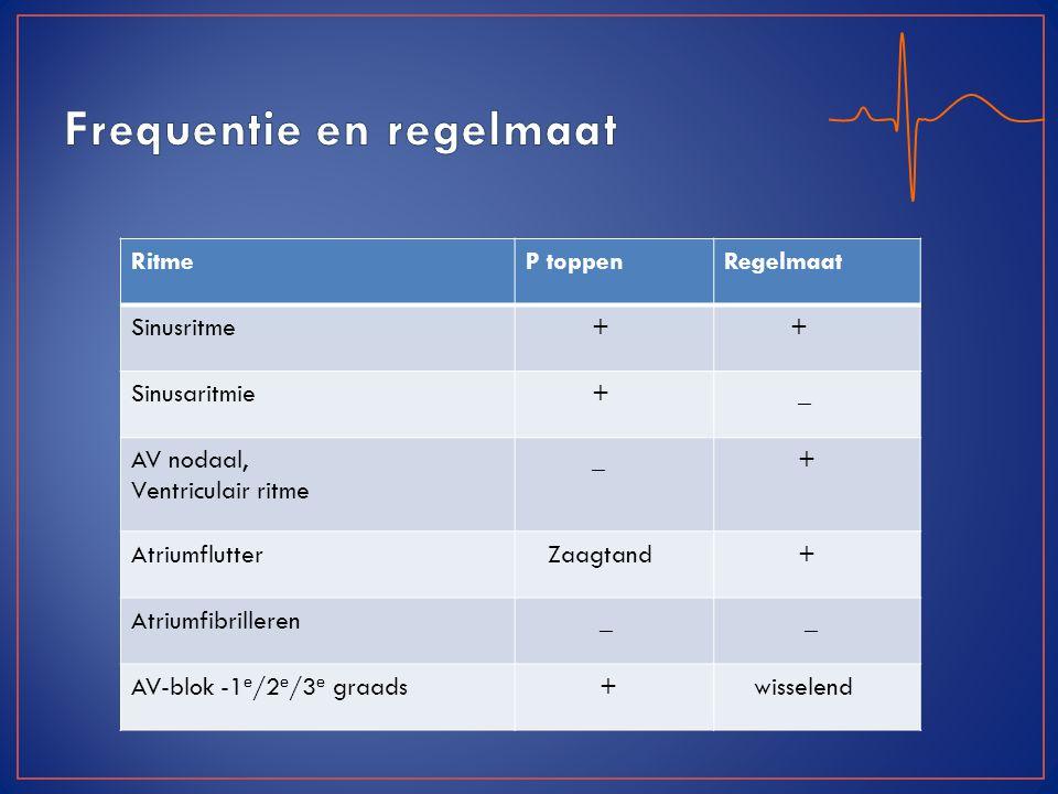 RitmeP toppenRegelmaat Sinusritme + + Sinusaritmie + _ AV nodaal, Ventriculair ritme _ + Atriumflutter Zaagtand + Atriumfibrilleren _ _ AV-blok -1 e /