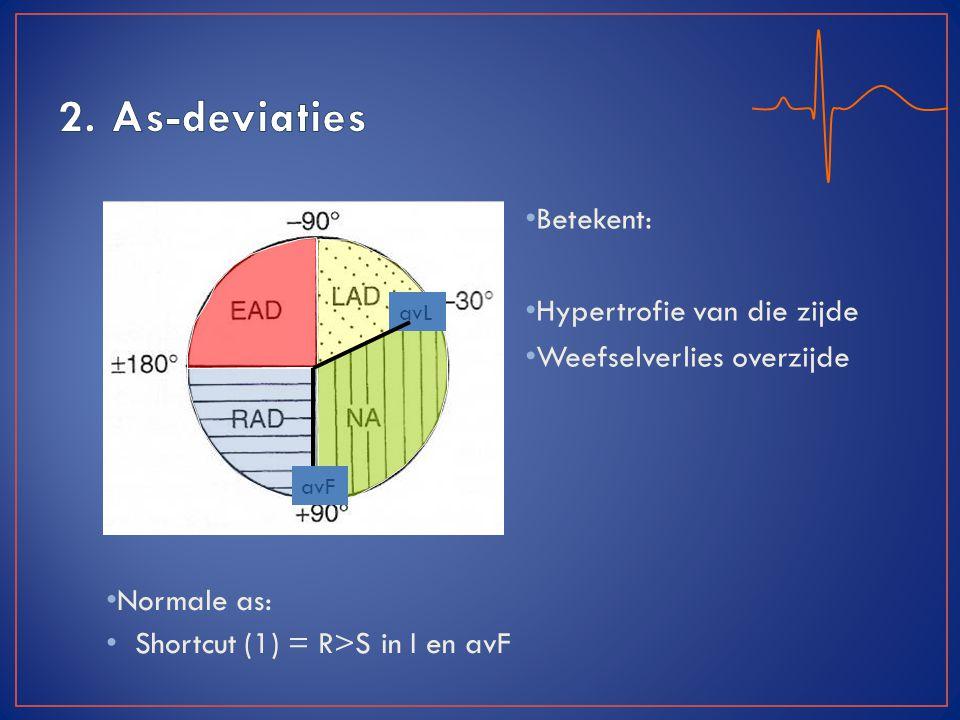 Normale as: Shortcut (1) = R>S in I en avF Betekent: Hypertrofie van die zijde Weefselverlies overzijde avL avF
