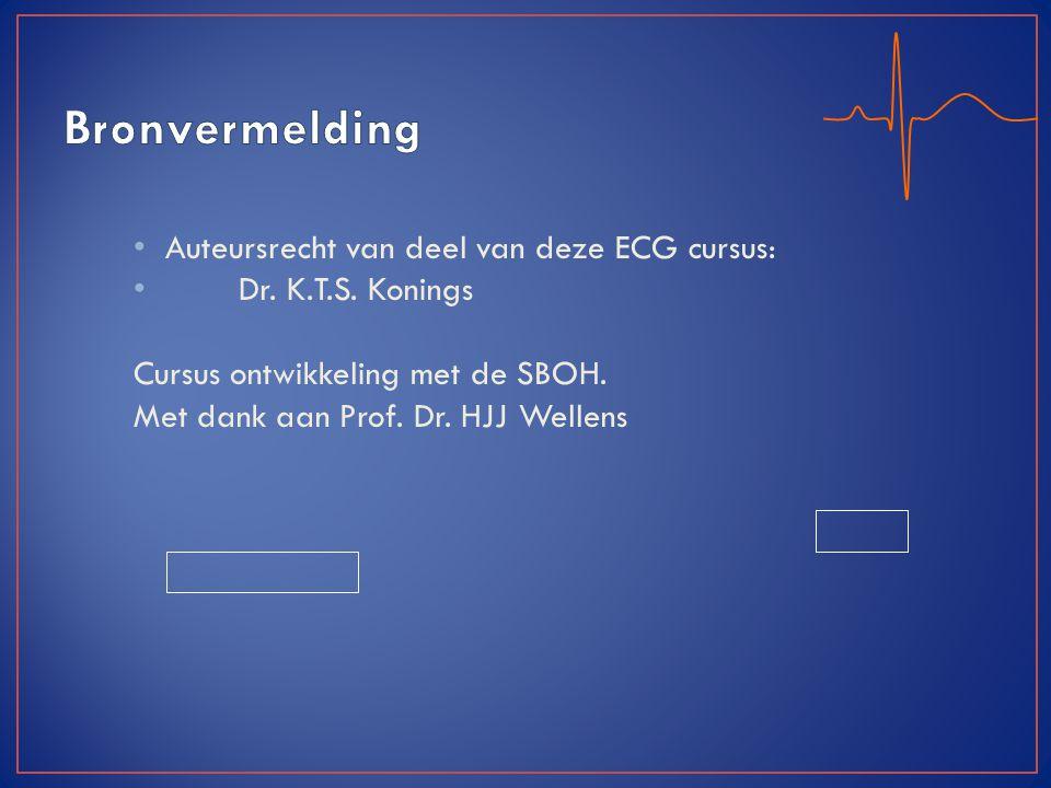 Auteursrecht van deel van deze ECG cursus: Dr. K.T.S. Konings Cursus ontwikkeling met de SBOH. Met dank aan Prof. Dr. HJJ Wellens