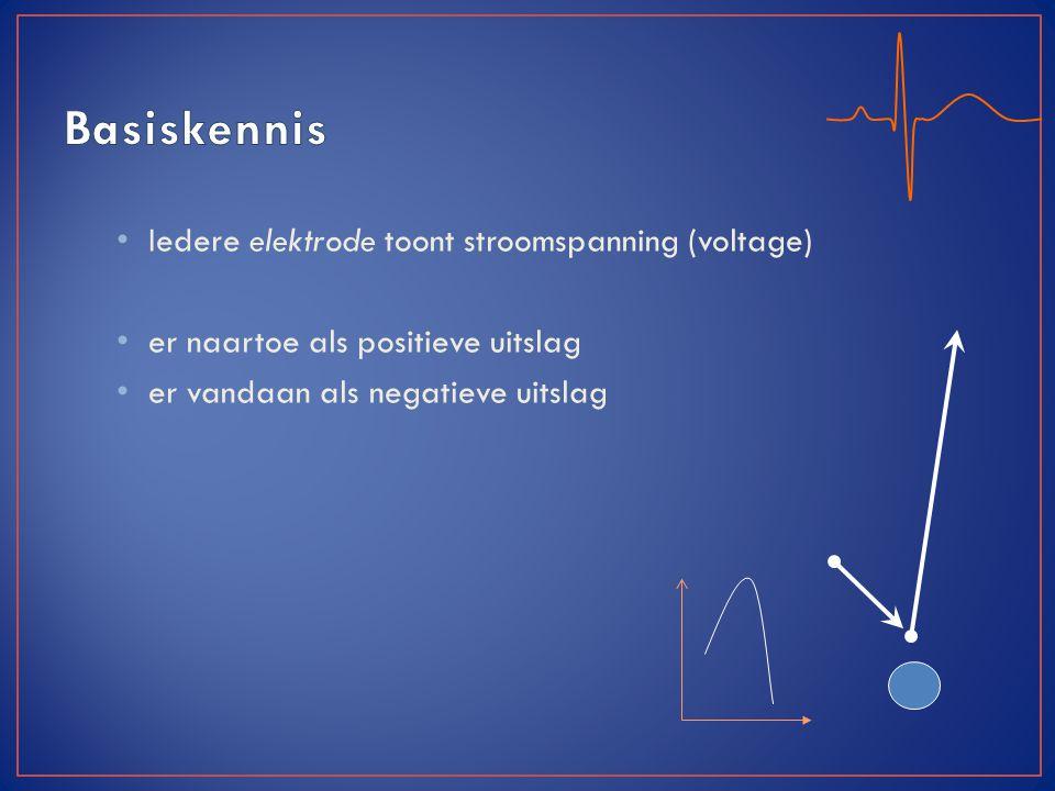 5 vakken (25mm) = 1s Standaard ECG = 10s 300 vakken (60x 1s) = 1min 1mm (1 hokje) = 0,04s 5mm (1 vak) = 0,2s 1mm =0.1mV