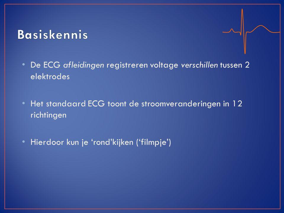 De ECG afleidingen registreren voltage verschillen tussen 2 elektrodes Het standaard ECG toont de stroomveranderingen in 12 richtingen Hierdoor kun je