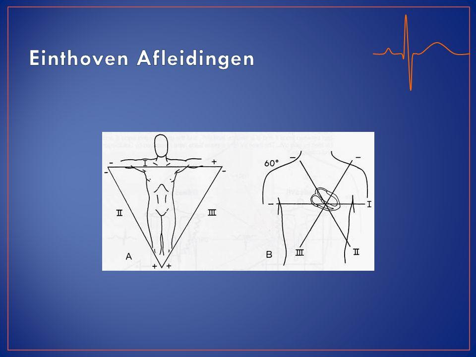 Afwijking in afleiding : -II, III en AVF: Onderwand -V1-4: Voorwand -I, AVL, V5-6: Lateraal