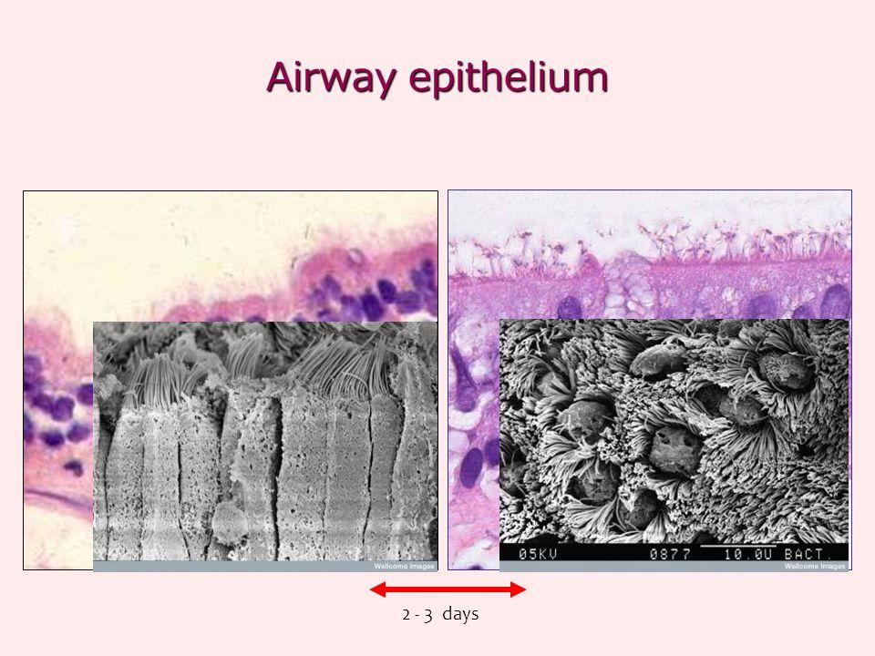 Airway epithelium 2 - 3 days