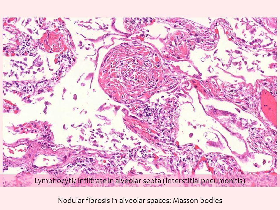 Nodular fibrosis in alveolar spaces: Masson bodies Lymphocytic infiltrate in alveolar septa (interstitial pneumonitis)