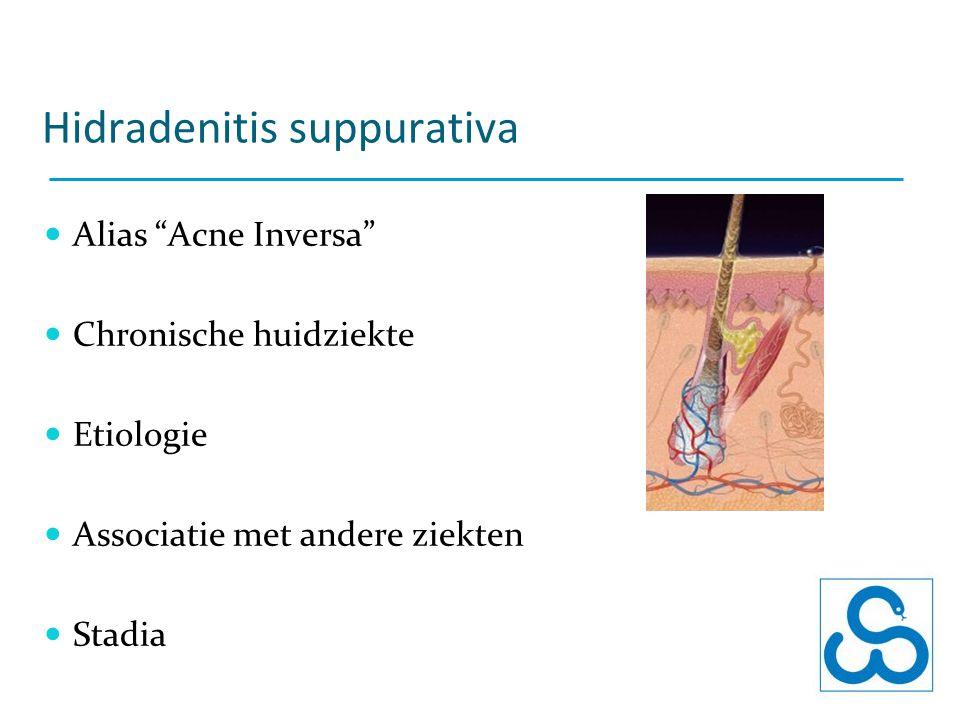 """Hidradenitis suppurativa Alias """"Acne Inversa"""" Chronische huidziekte Etiologie Associatie met andere ziekten Stadia"""