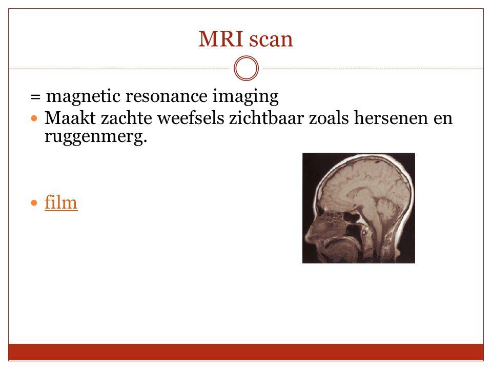 MRI scan = magnetic resonance imaging Maakt zachte weefsels zichtbaar zoals hersenen en ruggenmerg. film