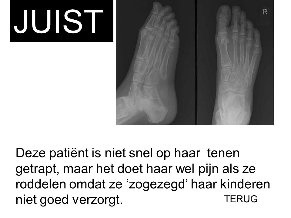 JUIST Deze patiënt is niet snel op haar tenen getrapt, maar het doet haar wel pijn als ze roddelen omdat ze 'zogezegd' haar kinderen niet goed verzorg