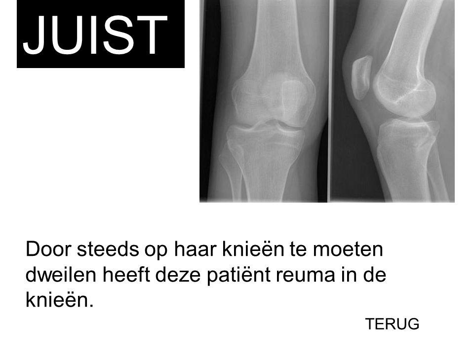 Door steeds op haar knieën te moeten dweilen heeft deze patiënt reuma in de knieën. JUIST TERUG