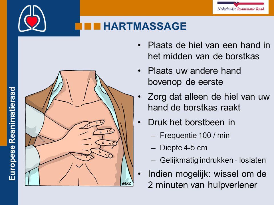 Europese Reanimatieraad Plaats de hiel van een hand in het midden van de borstkas Plaats uw andere hand bovenop de eerste Zorg dat alleen de hiel van