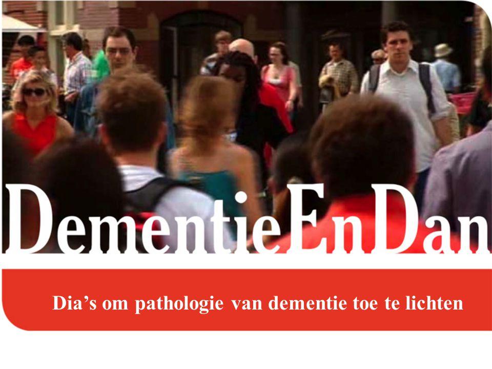 Vasculaire dementie: trombose en embolie Voorbeelden: links: afgesloten slagader rechts: een groot herseninfarct (eerst een infarct met een bloeding in het infarct als complicatie)