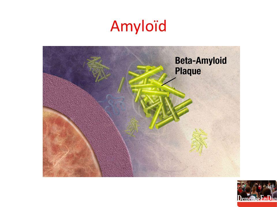 Amyloïd
