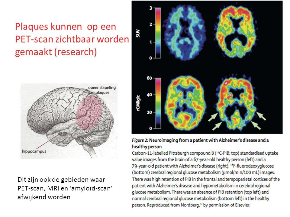 Plaques kunnen op een PET-scan zichtbaar worden gemaakt (research) Dit zijn ook de gebieden waar PET-scan, MRI en 'amyloïd-scan' afwijkend worden
