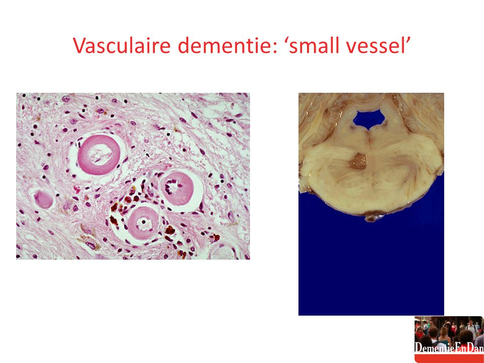 Vasculaire dementie: 'small vessel'