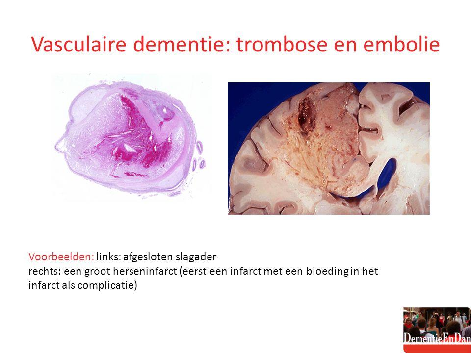 Vasculaire dementie: trombose en embolie Voorbeelden: links: afgesloten slagader rechts: een groot herseninfarct (eerst een infarct met een bloeding i