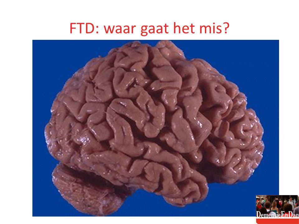 FTD: waar gaat het mis?