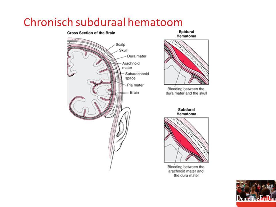 Chronisch subduraal hematoom