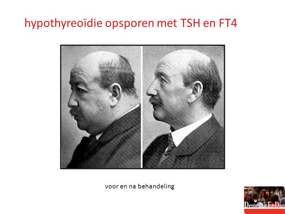 hypothyreoïdie opsporen met TSH en FT4 voor en na behandeling