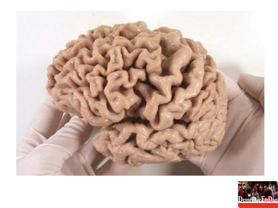 MRI FTD