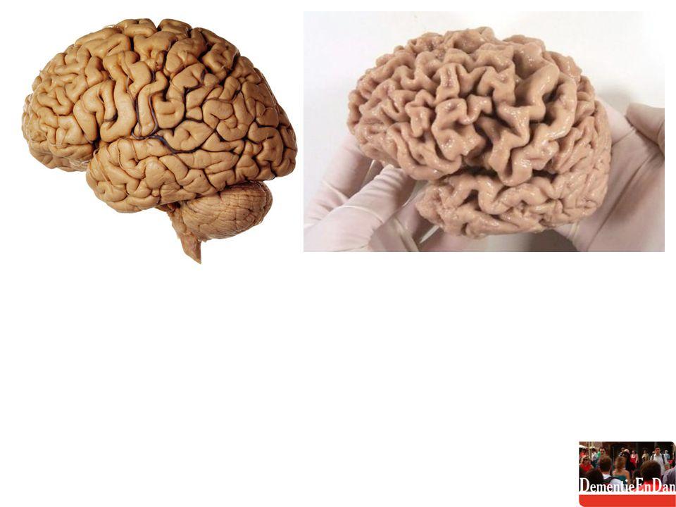 FTD kenmerken emotionele vervlakking; (sociale) gedragsrepertoire beschadigd; taalstoornissen (afasie): verschralen van de woordenschat geheugen (MMSE) intact (zeker in het begin) oordeelsvermogen verdwijnt; hygiëne, zelfzorg vermindert; onbuigzaam worden in denken en doen: obsessief gedrag, persevereren, echolalie en stereotype handelingen; ernstige apathie of impulsiviteit (ontremming) sluipend; vroege vorm in 40% van de gevallen dominant erfelijk