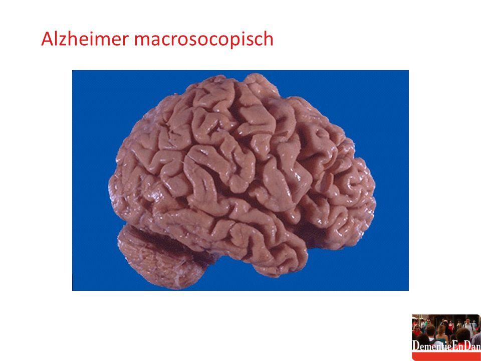 Alzheimer macrosocopisch Alzheimer macroscopisch algemeen