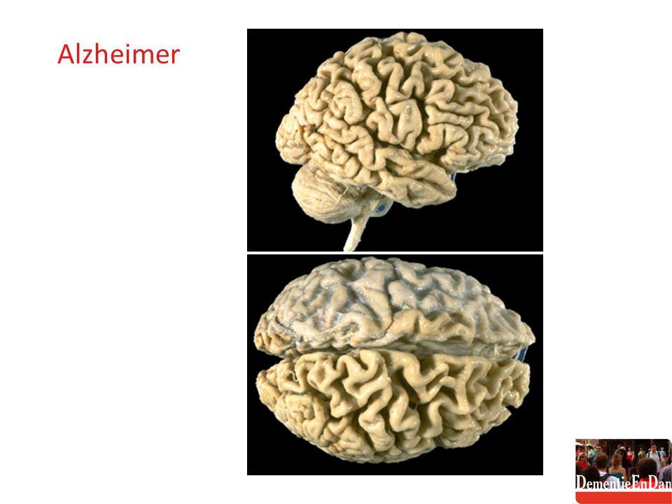 Vasculaire dementie: enkele kenmerken Wat regelmatig gezien kan worden -gestoorde inprenting en retrieval , de herkenning vaker langer intact - vertraging in de informatieverwerkig - prefrontale disfunctie met apathie, onverschilligheid, decorumverlies, opvliegendheid - depressie en apathie - uitvalsverschijnselen bij neurologisch onderzoek (extrapiramidaal en piramidaal), loopstoornissen, incontinentie Volgens de NINDS-AIREN-criteria - stapsgewijs, wisselend ('fluctuerend') of subacuut begin