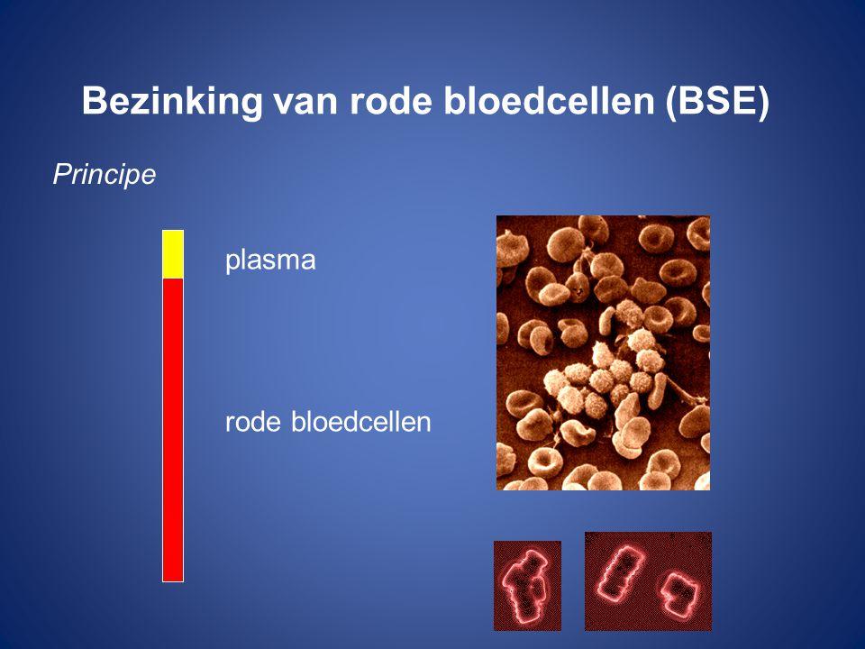 Bezinking van rode bloedcellen (BSE) Principe plasma rode bloedcellen