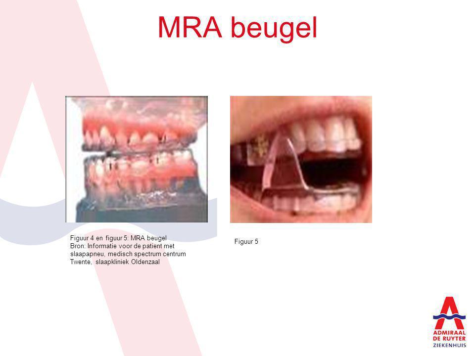 MRA beugel Figuur 4 en figuur 5: MRA beugel Bron: Informatie voor de patient met slaapapneu, medisch spectrum centrum Twente, slaapkliniek Oldenzaal F