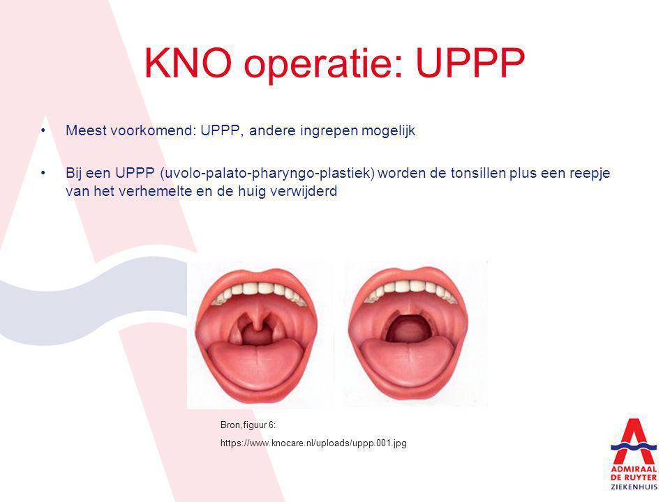 KNO operatie: UPPP Meest voorkomend: UPPP, andere ingrepen mogelijk Bij een UPPP (uvolo-palato-pharyngo-plastiek) worden de tonsillen plus een reepje