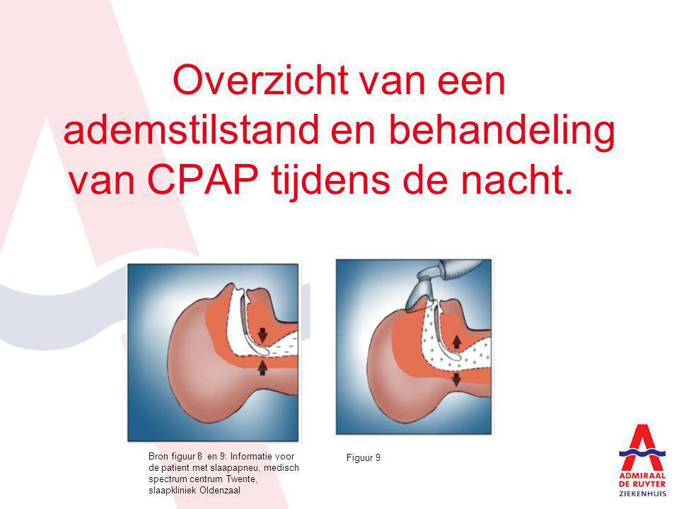Overzicht van een ademstilstand en behandeling van CPAP tijdens de nacht. Bron figuur 8 en 9: Informatie voor de patient met slaapapneu, medisch spect