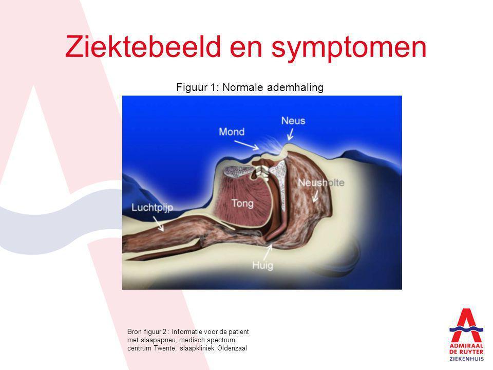 Ziektebeeld en symptomen Figuur 1: Normale ademhaling Bron figuur 2 : Informatie voor de patient met slaapapneu, medisch spectrum centrum Twente, slaa
