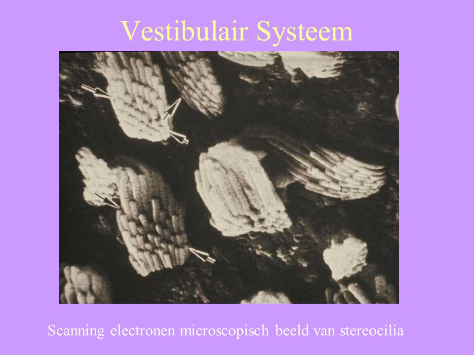 Vestibulair Systeem Scanning electronen microscopisch beeld van stereocilia