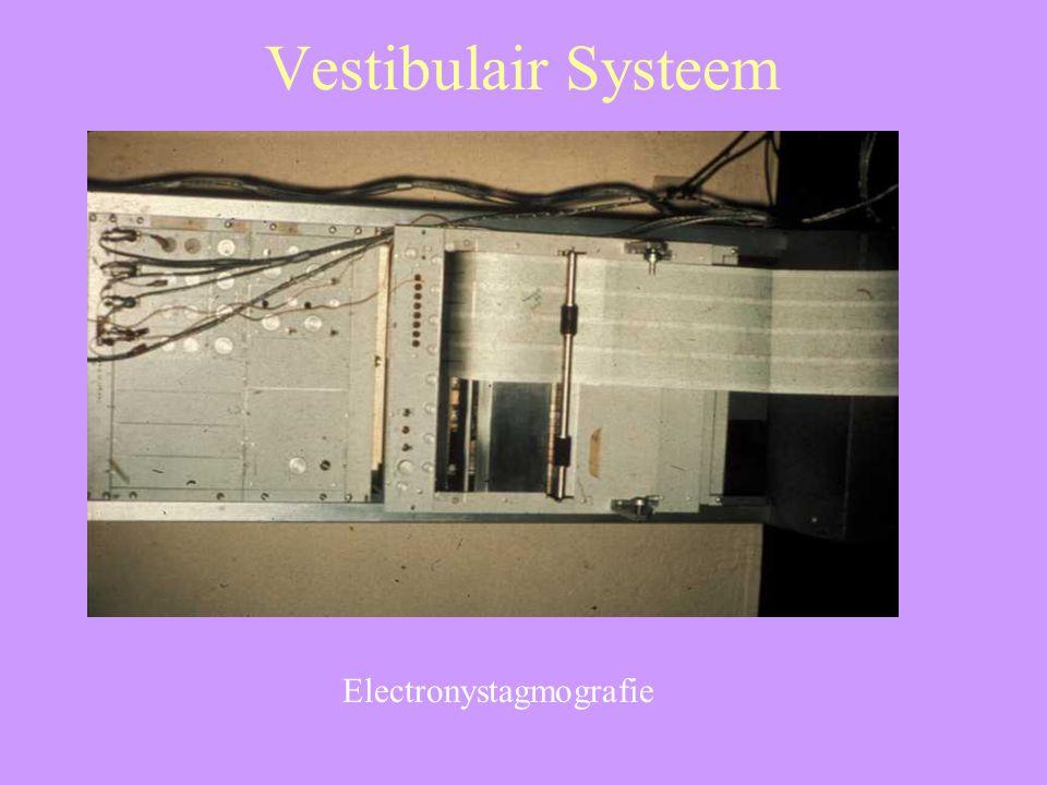 Electronystagmografie