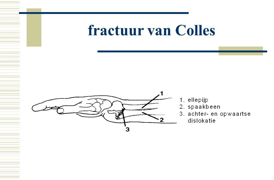 fractuur van Colles